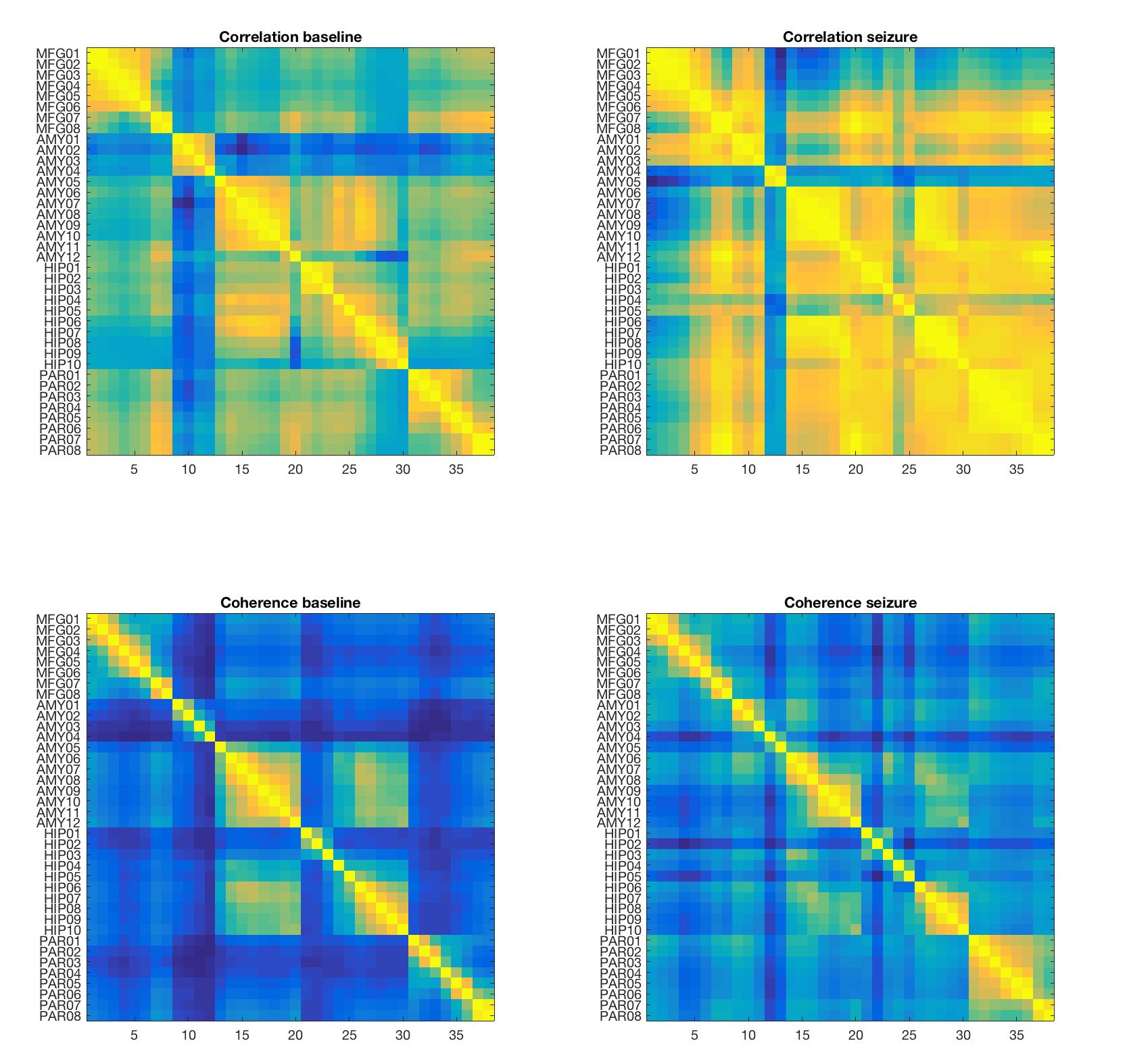 GitHub - roschkoenig/SEEG_Network: Using network modelling