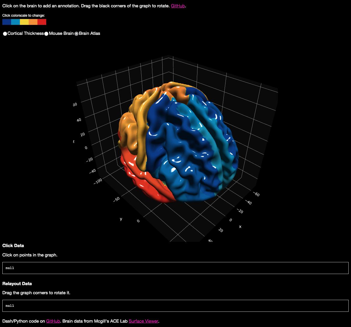 MRI Reconstruction [PYTHON] · Issue #24 · plotly/dash-sample