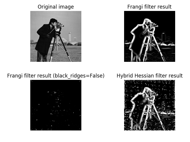 Bright ridge detection not working as expected with Frangi · Issue