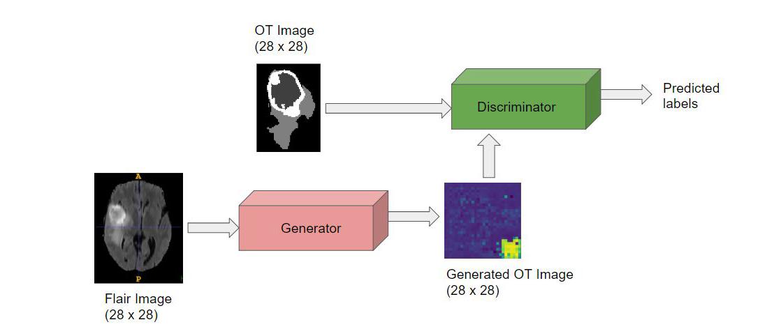 GitHub - SabareeshIyer/Brain-tumor-detection-in-3D-MRIs-using-DCGAN