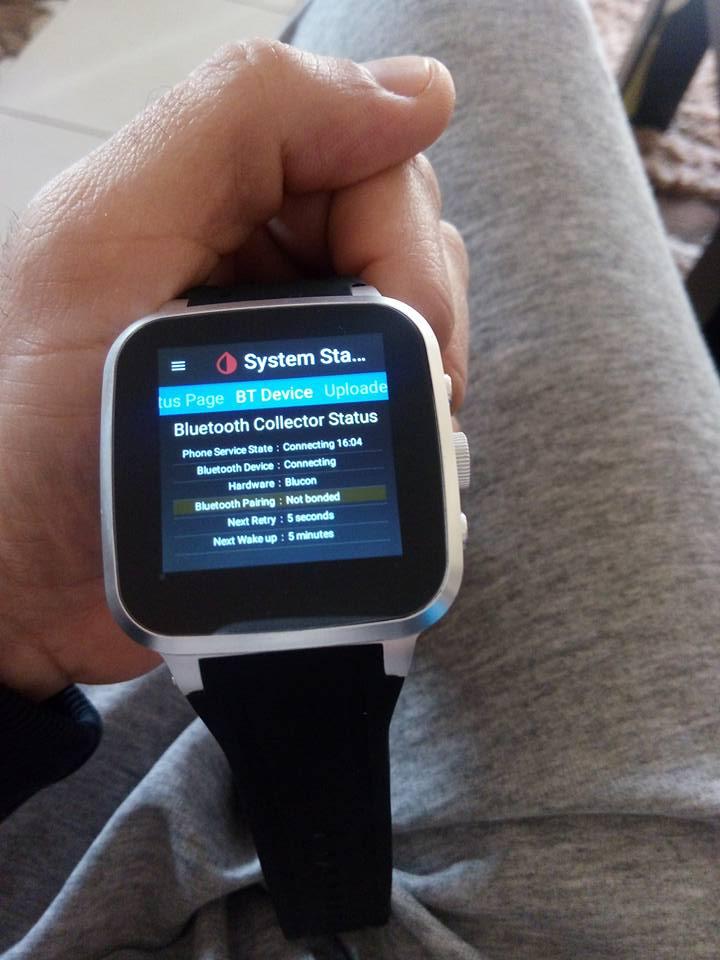 Top Five Xdrip+ Smartwatch Standalone - Circus