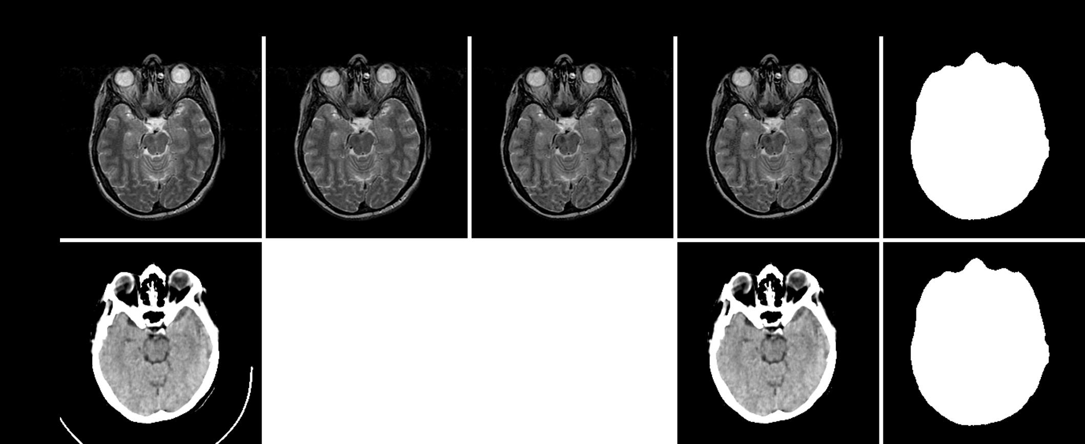 GitHub - ChengBinJin/MRI-to-CT-DCNN-TensorFlow: This repository is