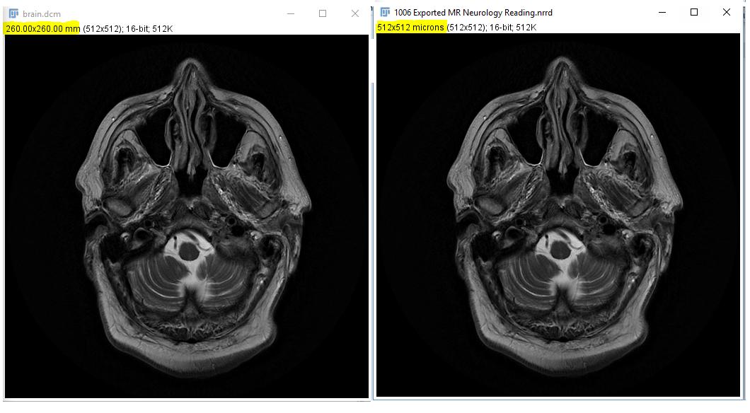 Image extraction, segmentation, resampling, 2D, MRI cardiac