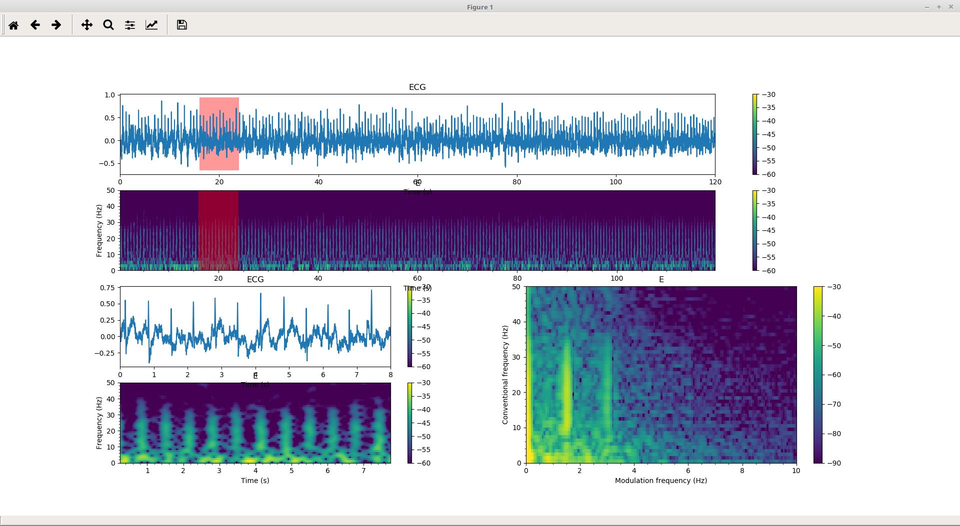 GitHub - MuSAELab/amplitude-modulation-analysis-module