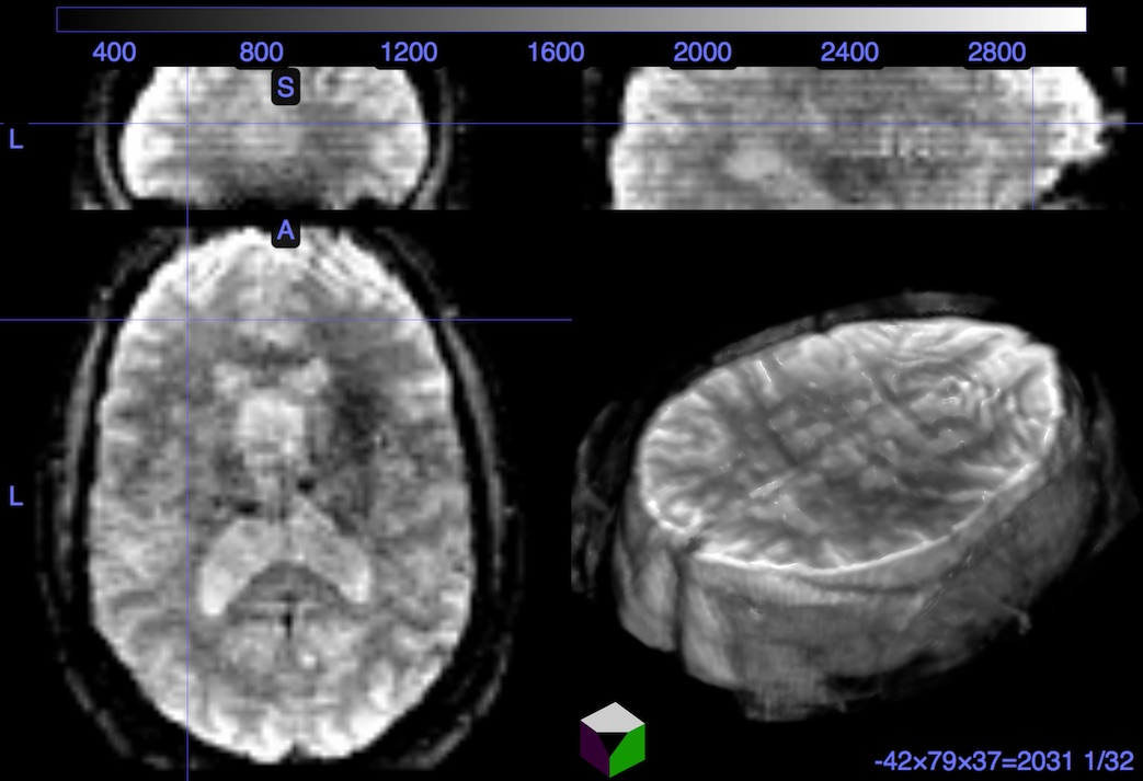 dcm2niix with resting-state multiband data · Issue #233